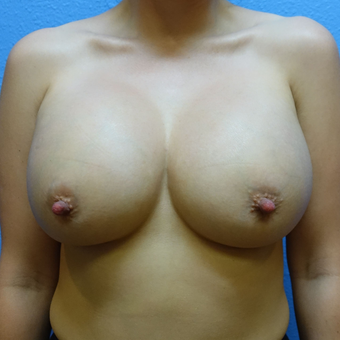 25-34 year old woman treated with Breast Augmentation after 3255062