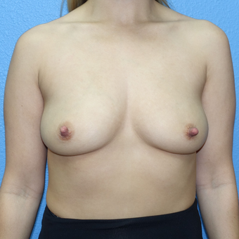 25-34 year old woman treated with Breast Augmentation before 3255062