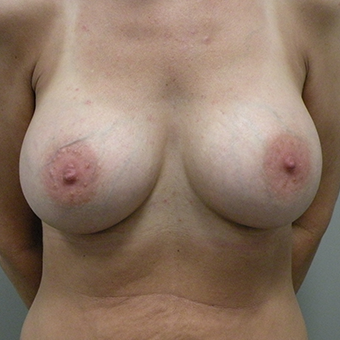35-44 year old woman treated with Breast Augmentation after 3446383