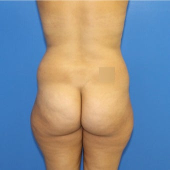 25-34 year old woman treated with Brazilian Butt Lift before 1796002