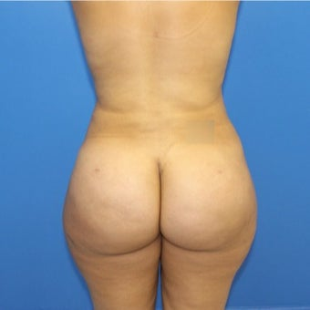 25-34 year old woman treated with Brazilian Butt Lift after 1796002