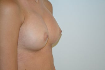 Breast Augmentation/Implants 1-2 after 1110454