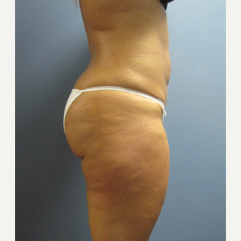 25-34 year old woman treated with Liposuction after 3763711