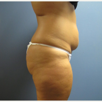 25-34 year old woman treated with Liposuction before 3763711