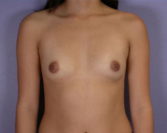 Breast Augmentation before 281391