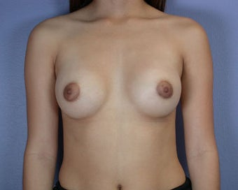 Breast Augmentation after 281391