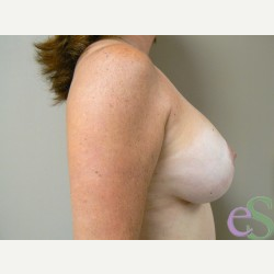 Breast Lift with Implants after 3373442