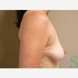 Breast Lift with Implants before 3373442