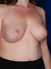 Fat Transfer for Breasts 1460380