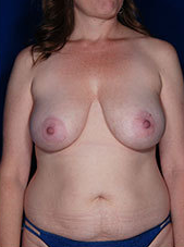 Fat Transfer for Breasts before 1460380