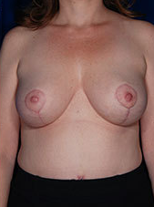 Fat Transfer for Breasts after 1460380
