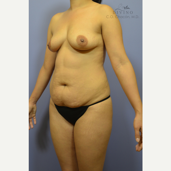 25-34 year old woman treated with Mommy Makeover before 3421641