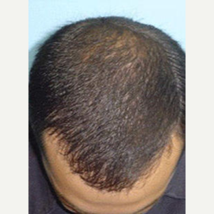 45-54 year old man treated with FUE Hair Transplant after 3710339