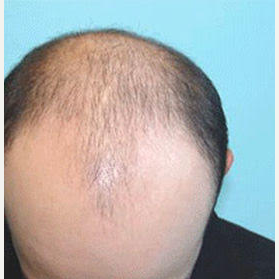 45-54 year old man treated with FUE Hair Transplant before 3710339