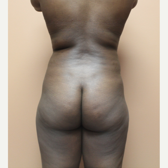 25-34 year old woman treated with Brazilian Butt Lift before 3338840