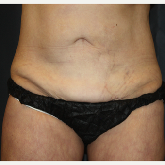 45-54 year old woman treated with SculpSure after 3299376