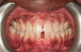55-64 year old man treated with Braces