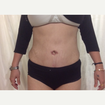 35-44 year old woman treated with Tummy Tuck after 3444468