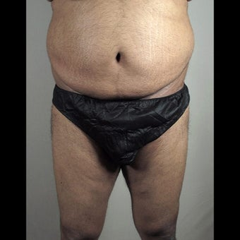 35-44 year old man treated for Thigh Lift after 1527868