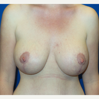 35-44 year old woman treated with Breast Lift after 3252693