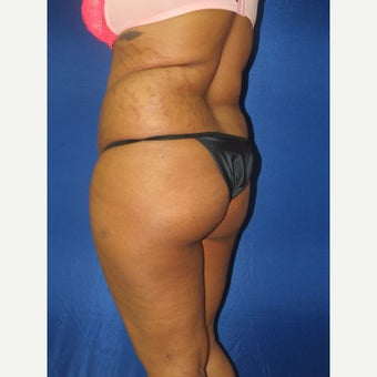 25-34 year old woman treated with Brazilian Butt Lift before 2295796