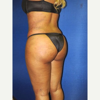 25-34 year old woman treated with Brazilian Butt Lift after 2295796
