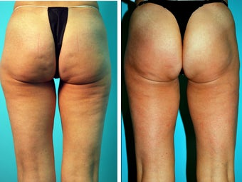 Female treated for Cellulite