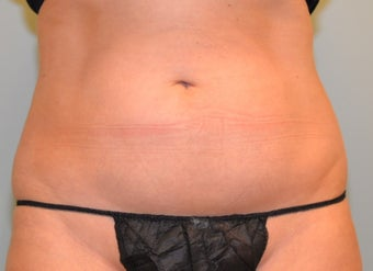 38 Year Old Woman for CoolSculpting