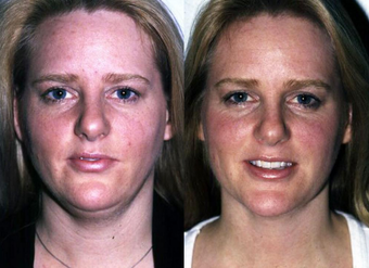 Neck Liposuction before 1182889