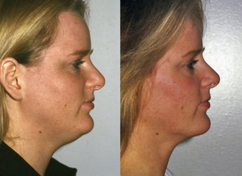 Neck Liposuction after 1182889