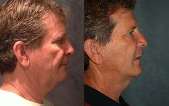 Full Face Ultherapy pn Male Patient