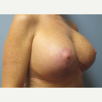 45-54 year old woman treated with Breast Lift with Implants after 3538991
