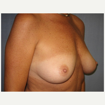 45-54 year old woman treated with Breast Lift with Implants before 3538991
