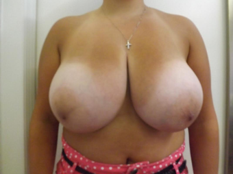 Breast Reduction before 1292845