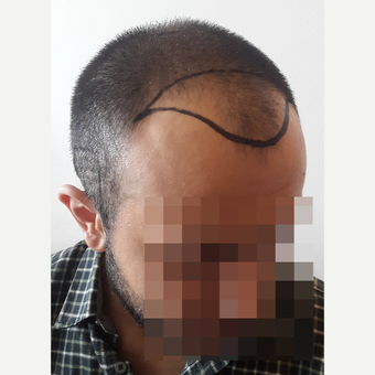 18-24 year old man treated with FUE Hair Transplant before 3729969