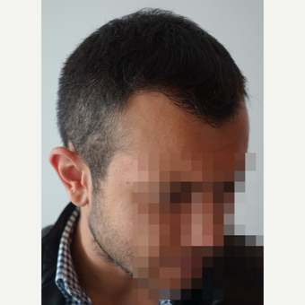 18-24 year old man treated with FUE Hair Transplant after 3729969
