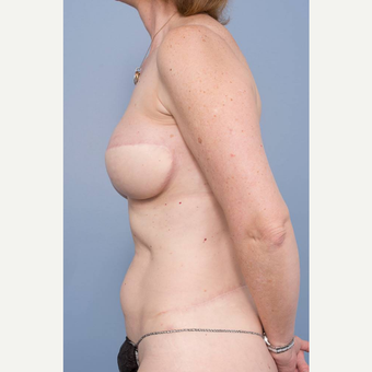 45-54 year old woman treated with Lumbar Artery Perforator Flap Breast Reconstruction after 3484854