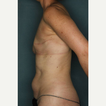 45-54 year old woman treated with Lumbar Artery Perforator Flap Breast Reconstruction before 3484854