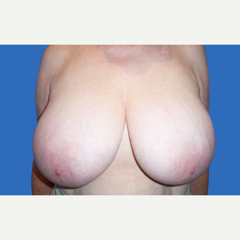 55-64 year old woman treated with Breast Reduction before 3280913
