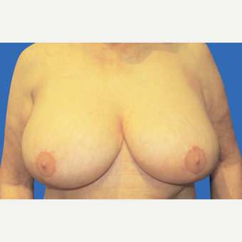 55-64 year old woman treated with Breast Reduction after 3280913