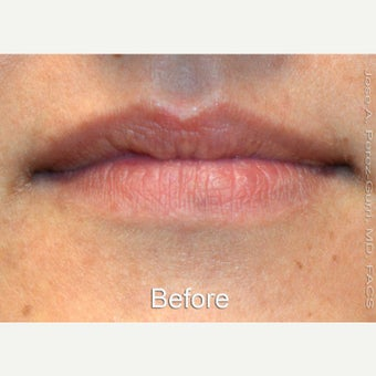 18-24 year old woman treated with Lip Augmentation with Juvederm Ultra XC before 1630783