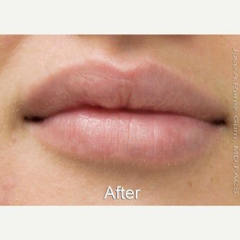 18-24 year old woman treated with Lip Augmentation with Juvederm Ultra XC after 1630783