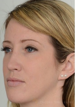 25-34 year old woman treated with Rhinoplasty after 3259986