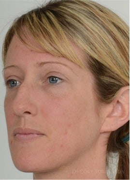 25-34 year old woman treated with Rhinoplasty before 3259986