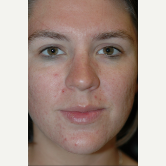 18-24 year old woman treated with Acne Treatment before 1649926