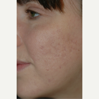 18-24 year old woman treated with Acne Treatment 1649926