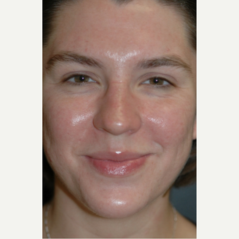 18-24 year old woman treated with Acne Treatment after 1649926