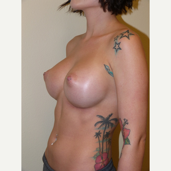 Breast Implants after 3806961