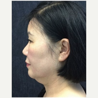 55-64 year old woman treated with Ultherapy before 3179943