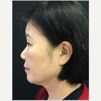 55-64 year old woman treated with Ultherapy after 3179943